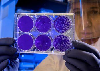 וירוס, צילום: CDC